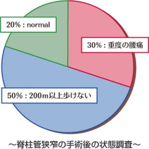 脊柱管狭窄についてのグラフ