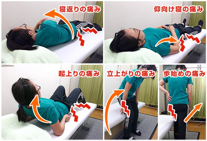 脊柱管狭窄で痛みの起こる体勢写真